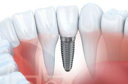 implantes dentários amarante